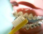 ●左からのハブラシの当て方(前歯の場合)